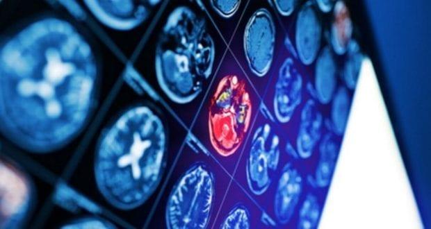 CT Gehirn Schlaganfall