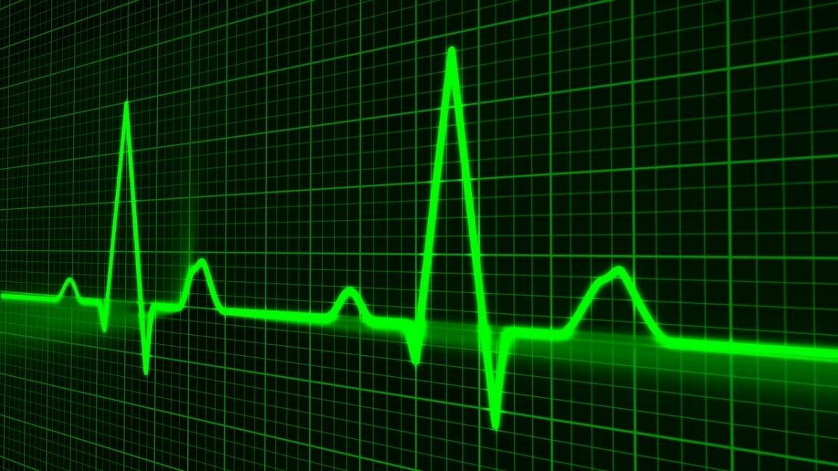 EKG EKG-Linie