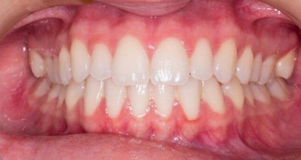 Gebiss Zahnarzt Zahn
